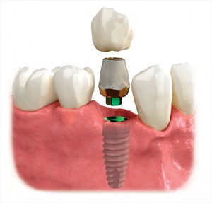 Implant Fixture with a Crown