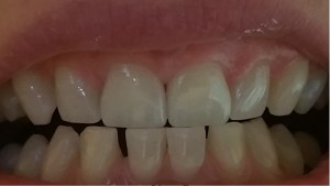 A Natural Result with ZOOM Whitening
